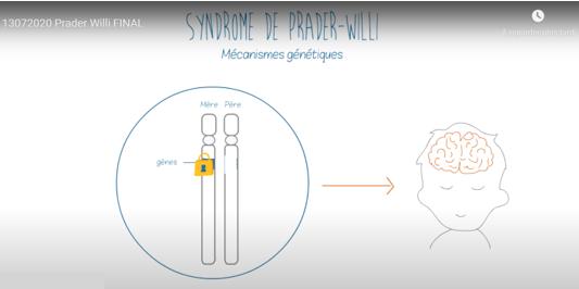 Animation expliquant le syndrome de Prader-Willi